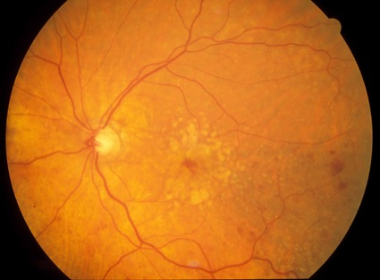 I have a macular problem – how worried should I be about delay in treatment?